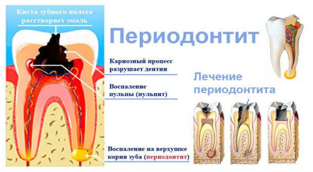 К чему может привести периодонтит